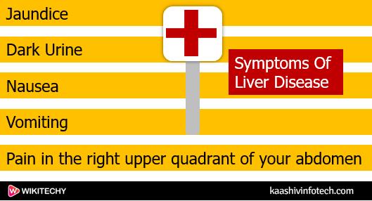 symptoms of liver disease