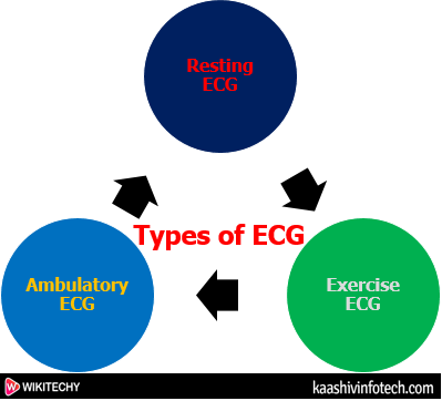 Types of ECG