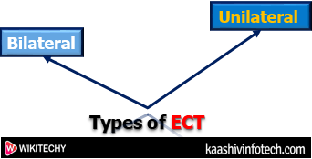 Types of ECT